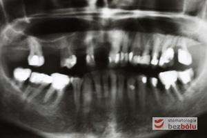 Diagnostyka radiologiczna - ortopantomogram wskazuje zęby nierokujące do usunięcia i liczne wypełnienia do wymiany