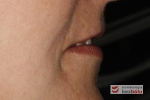 Ocena profilu twarzy - w ocenie estetycznej górna i dolna warga mieszcząca się w granicach normy