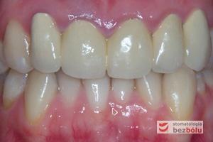 Zęby górne i dolne w zwarciu - stłoczenia i wady zębowe w łuku dolnym, nieestetyczne korony na siekaczach w szczęce