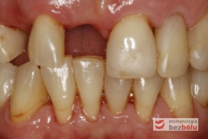 Brakujący siekacz centralny i kieł po stronie prawej - pojedyncze braki zębowe w przednim odcinku powodują dysharmonię i złe samopoczucie