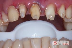 Stan filarów i dziąseł po zdjęciu dotychczasowych koron - zęby opracowano jako filary pod przyszłe protetyczne uzupełnienia pełnoorcelanowe