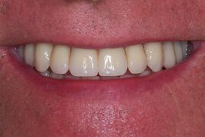 O takie zęby mi chodziło