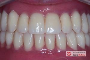 Wprowadzone protezy całkowite do jamy ustnej - akrylowe protezy całkowite z zębami Michał Anioł Integrale w zwarciu w jamie ustnej
