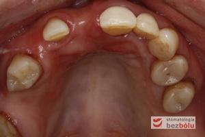 Powierzchnie okluzyjne górnego łuku zębowego - zęby szczęki przygotowane zachowawczo do dobudowy implanto-protetycznej
