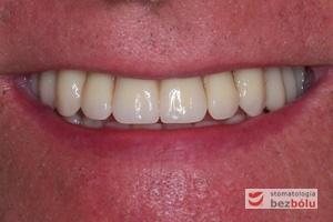 """Uśmiech pacjenta po przeprowadzonym leczeniu - """"O takie zęby mi chodziło..."""""""