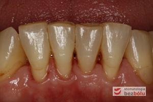 Status dolnego łuku zębowego - mierny stopień zaniku dziąsła- nieliczne wypełnienia przyszyjkowe i okluzyjne