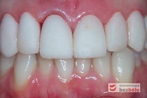 Dostosowanie i próba ostatecznych koron - niewypolerowane korony przymierzone na filarach w celu oceny linii dziąseł i uśmiechu