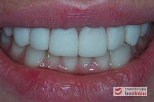 Ocena surowych koron w uśmiechu - znieczulenie miejscowe zniekształca uśmiech pacjentki i utrudnia ocenę estetyczną