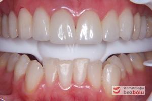 Długoczasowe korony prowizoryczne - etap pośredni - materiał PMMA doskonale imituje naturalny wygląd zębów i wspomaga zarządzanie tkanką miękką.