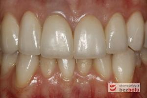 Ostateczne korony pełnoceramiczne w jamie ustnej - zacementowane korony pełnoceramiczne z poszanowaniem tkanki miękkiej i wyrównaną girlandą dziąsłową