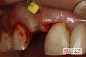 Mapowanie kości - diagnostyka grubości błony śluzowej przy użyciu instrumentu endodontycznego