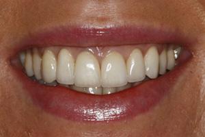 Zachwycający uśmiech pacjentki