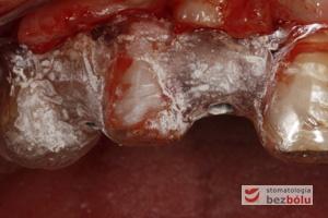 Szablon implantologiczny oparty na zębach - tuleje metalowe służące do wprowadzenia pierwszego wiertła pilotowego