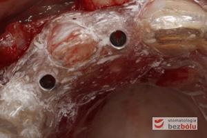 Szablon implantologiczny oparty na zębach - tuleje metalowe służące do wprowadzenia pierwszego wiertła pilotowegoSzablon implantologiczny oparty na zębach - tuleje metalowe służące do wprowadzenia pierwszego wiertła pilotowego
