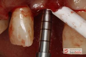 Opracowanie osteotomem kształtu łoża implantu - wyznaczone linie na instrumencie pozwalają ocenić głębokość preparacji łoża implantu