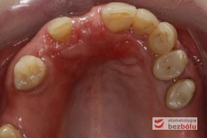 Obraz kliniczny przed ekspozycją implantu - wyrostek zębodołowy 3 miesiące po implantacji przygotowany do odsłonięcia implantu