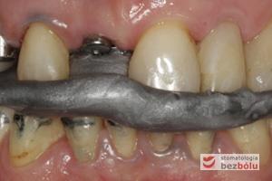 Ustalenie zgryzu nawykowego pacjentki - wosk aluminiowy służący do przeniesienia zgryzu do laboratorium protetycznego