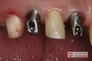 Ostateczne tytanowe filary protetyczne in situ - ofrezowane i przygotowane laboratoryjnie łączniki wprowadzone do implantów