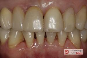 Ostateczna praca protetyczna w ustach pacjentki - korony na implantach - mosty w strefach bocznych - licówka na dwójce górnej prawej