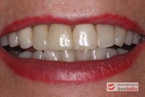 Bezcenny uśmiech pacjentki - implanty zębowe