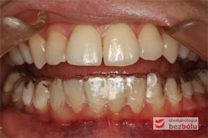 Gotowa nakładka prostująca zęby w jamie ustnej