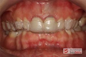 Gotowa szyna repozycjonująca zęby w jamie ustnej
