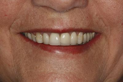 Uśmiech pacjenta radością lekarza