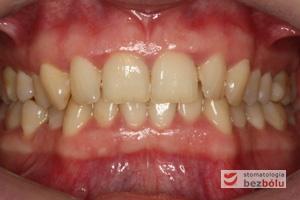 Zwarcie zębów przed leczeniem z wykorzystaniem systemu DAMON