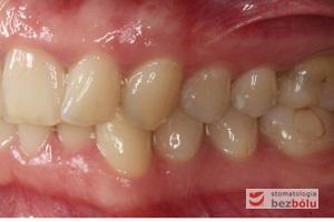 Widok okluzji po stronie lewej przed leczeniem