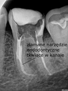 Złamane narzędzie endodontyczne tkwiące w kanale uniemożliwia prawidłową dezynfekcję systemu kanałowego - Sięgnąć gdzie wzrok nie sięga