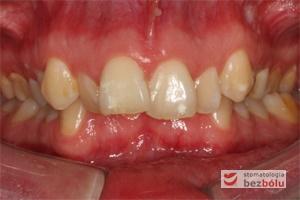 Zgryz pacjentki przed leczeniem, widoczne bardzo duże stłoczenia zębów, zgryz krzyżowy obustronny