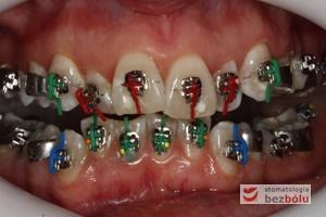 II faza leczenia - założenie aparatu DAMON ze zróżnicowanym torkiem dla poszczególnych zębów