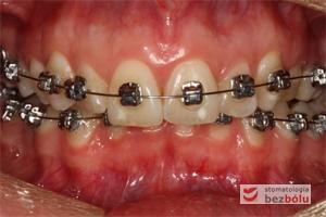 II faza leczenia - 2,5 miesiąca od założenia aparatu DAMON