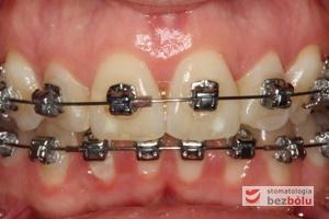 II faza leczenia - 9 miesięcy od założenia aparatu DAMON