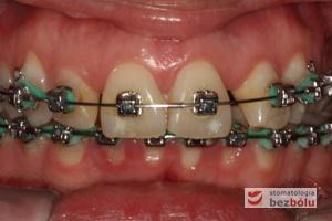 II faza leczenia - 18 miesiący od założenia aparatu DAMON