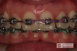 II faza leczenia - 20 miesięcy od założenia aparatu DAMON