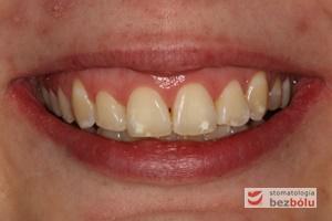 Wygląd zębów w zwarciu po zdjęciu aparatu