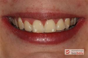 Uśmiech zadowolonej pacjentki z efektów terapii