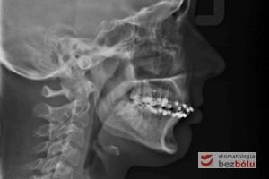 Kontrolne zdjęcie cefalometryczne (tele)