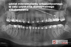 Kontrolne zdjęcie pantomograficzne w celu oceny pozycji korzeni zębów