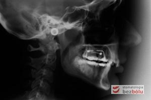 Zdjęcie radiologiczne cefalometryczne wykonane przed leczeniem ortodontycznym