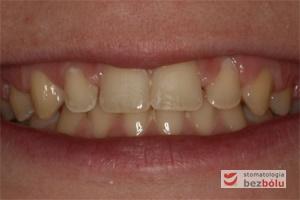 Uśmiech pacjentki przed leczeniem - leczenie ortodontyczne jako przygotowanie protetyczne