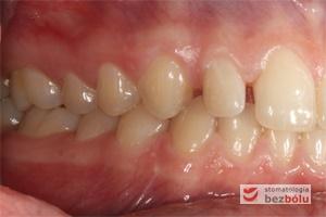 Zęby w zwarciu po stronie prawej przed leczeniem