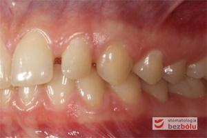 Zęby w zwarciu po stronie lewej przed leczeniem