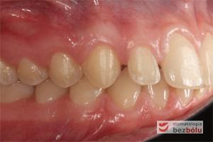 Zgryz pacjentki po zakończonym leczeniu ortodontycznym - strona prawa