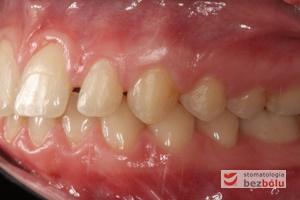 Zgryz pacjentki po zakończonym leczeniu ortodontycznym - strona lewa