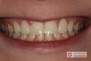 Uśmiech pacjentki po zakończonym leczeniu ortodontyczno-protetycznym