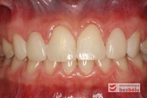 Okluzja po leczeniu ortodontyczno-protetycznym