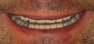 Zaakceptowany przez pacjenta projekt nowego uśmiechu -  DSD - Digital Smile Design