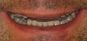 Uśmiech pacjenta przed leczeniem - DSD - Digital Smile Design